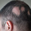 Why Are People Scared of Alopecia?