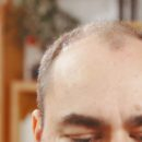 What's The Best Way To Fix Baldness In The UK