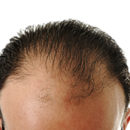 Can SMP Cure Hair Loss & Give You A Perfect Look?
