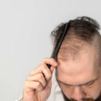 What's The Best Way To Deal With Alopecia?