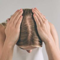 What Are Major Causes of Hair Loss In Women?